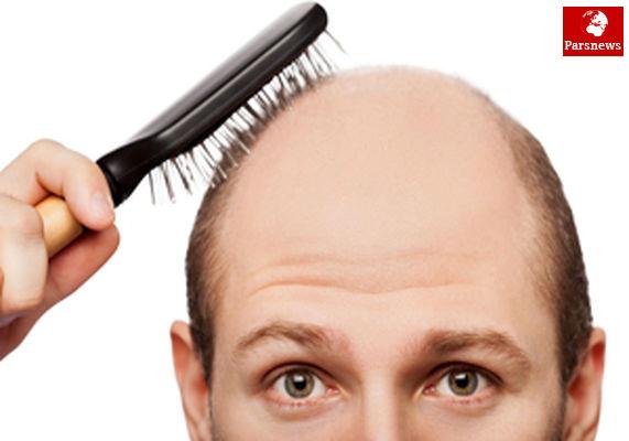 درمان ریزش موی چرب