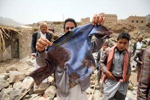 حمله دوباره سعودی به یمن/فیلم